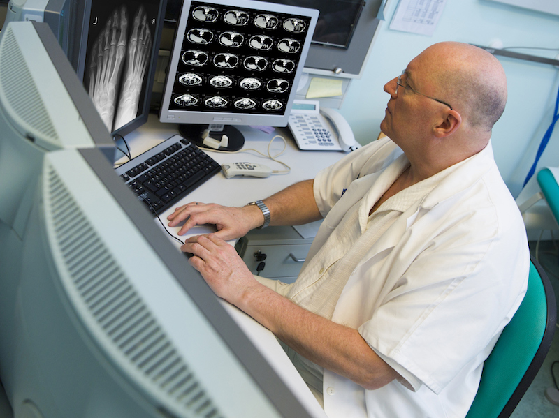 MRI scans in the data age