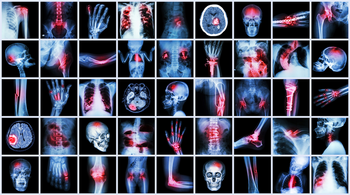 How Data Will Enable Artificial Intelligence to Aid in Diagnostics